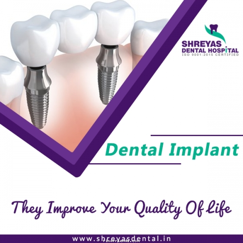 Get Dental Implant in 3 Days Without Any Extra Charges